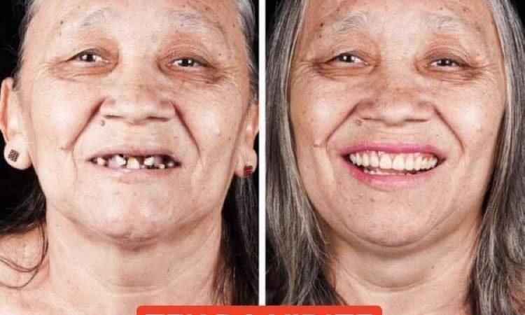 Pogledajte koliko sređeni zubi mogu transformisati osobe