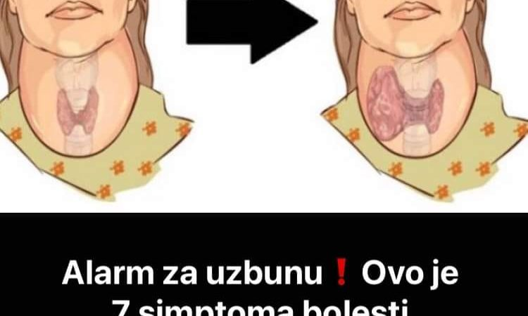 Ovo je 7 simptoma bolesti stitnjače
