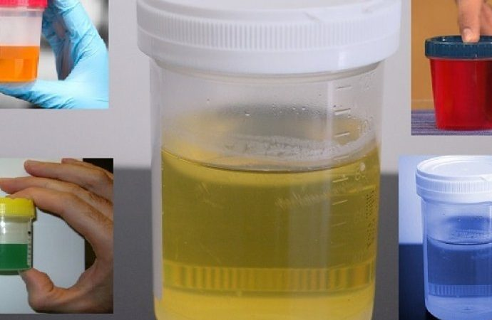 Pogledajte šta otkriva boja urina