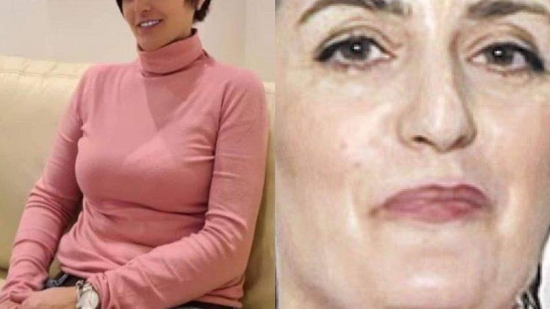 Majka Ane Korać se ponovo podvrgla estetskim zahvatima, pogledajte kako sada izgleda