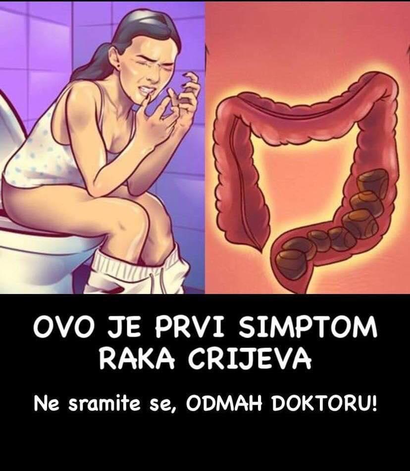 Pogledajte prve simptome raka debelog crijeva