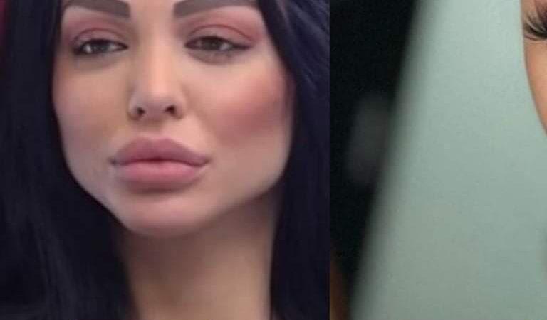 Maja uradila novu korekciju na licu, pogledajte kako sada izgleda
